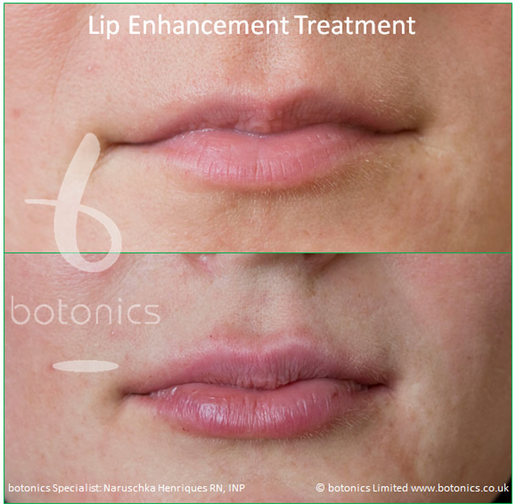 dermal fillers lip enhancement treatment restylane lipp before and after botonics naruschka henriques 2
