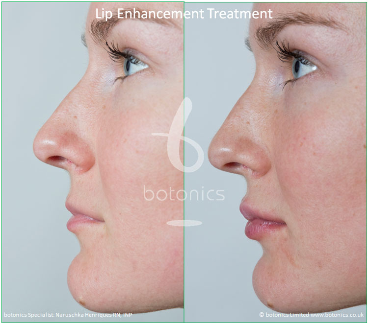 dermal fillers lip enhancement treatment restylane lipp before and after botonics naruschka henriques 3