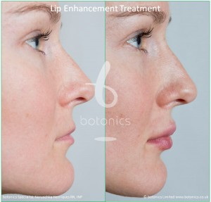 dermal fillers lip enhancement treatment restylane lipp before and after botonics naruschka henriques 4