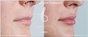 dermal fillers lip enhancement treatment restylane lipp before and after botonics naruschka henriques 6
