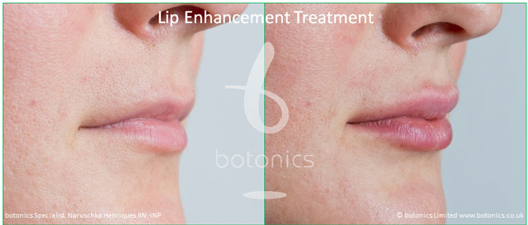 dermal fillers lip enhancement treatment restylane lipp before and after botonics naruschka henriques 6
