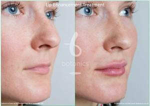 dermal fillers lip enhancement treatment restylane lipp before and after botonics naruschka henriques
