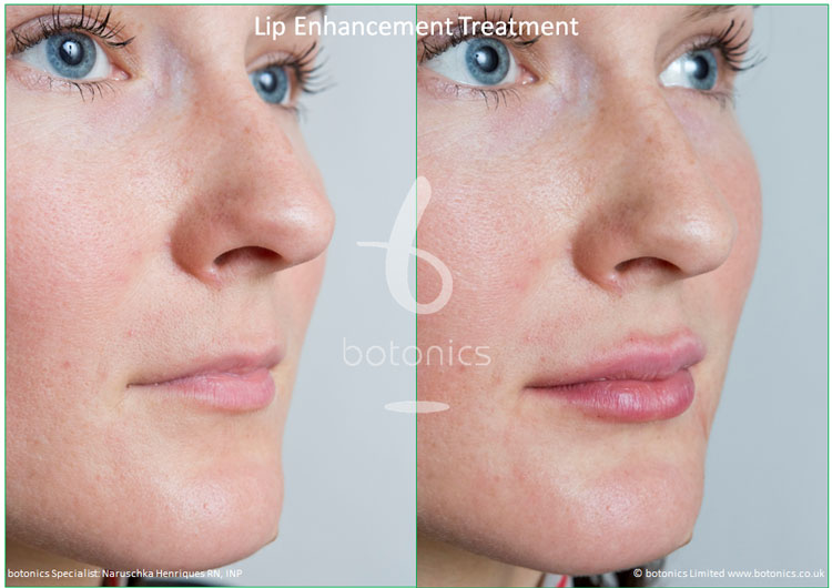 dermal fillers lip enhancement treatment restylane lipp before and after botonics naruschka henriques