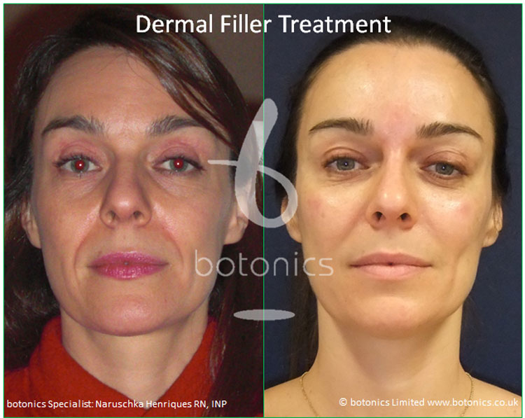 dermal fillers liquid face lift y lift treatment restylane perlane subq treatment before and after botonics naruschka henriques