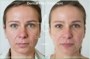dermal fillers nose to mouth line nasolabial folds restylane perlane treatment before and after botonics naruschka henriques 1