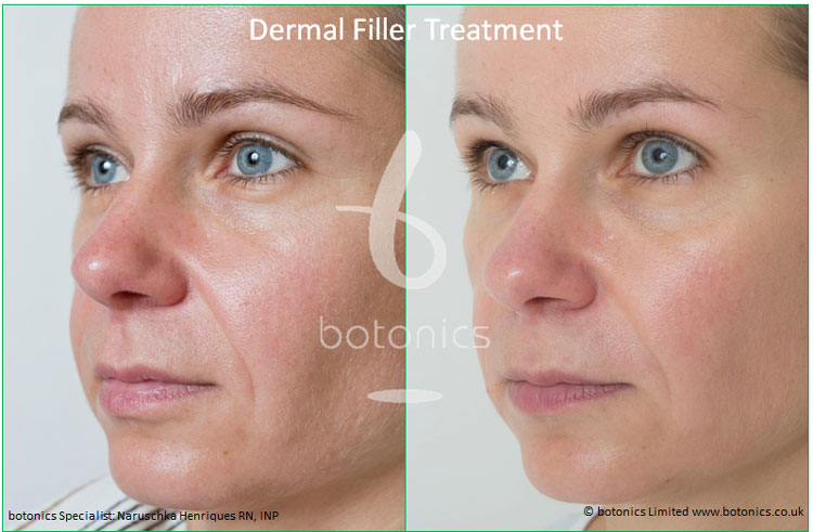 dermal fillers nose to mouth line nasolabial folds restylane perlane treatment before and after botonics naruschka henriques 2
