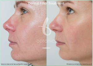 dermal fillers nose to mouth line nasolabial folds restylane perlane treatment before and after botonics naruschka henriques 3