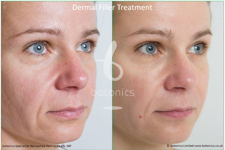 dermal fillers nose to mouth line nasolabial folds restylane perlane treatment before and after botonics naruschka henriques 4