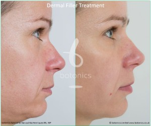 dermal fillers nose to mouth line nasolabial folds restylane perlane treatment before and after botonics naruschka henriques 5