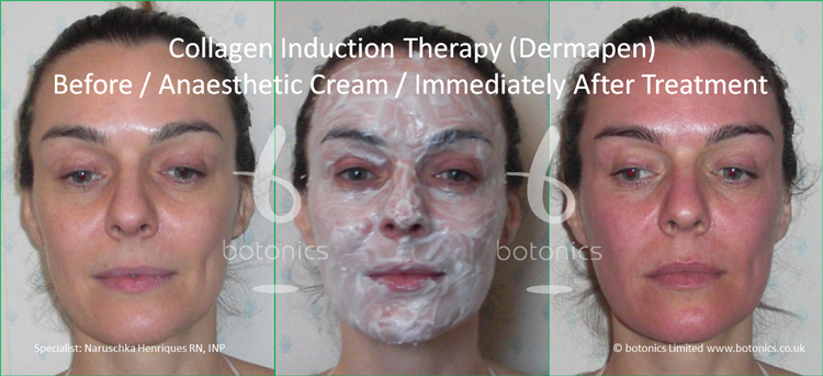 Redness following collagen induction therapy treatment immediately after with anaesthetic cream applied