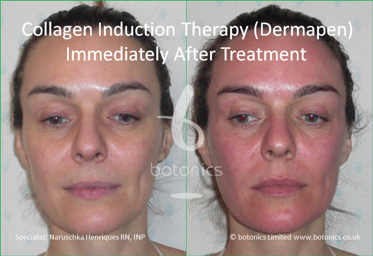 Redness following collagen induction therapy treatment immediately after
