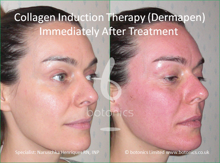 Redness following collagen induction therapy treatment immediately after from right