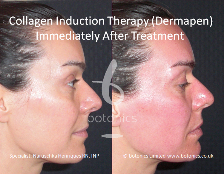 Redness following collagen induction therapy treatment immediately after right profile