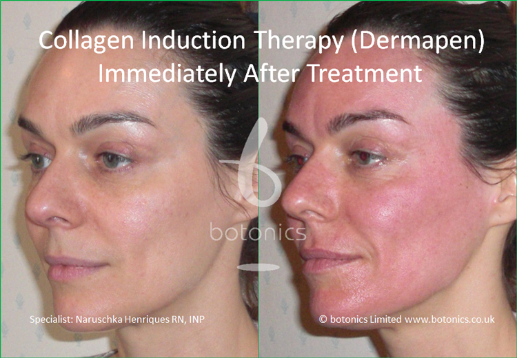 Redness following collagen induction therapy treatment immediately after from left