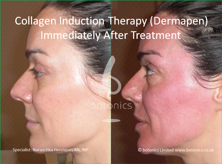 Redness following collagen induction therapy treatment immediately after left profile