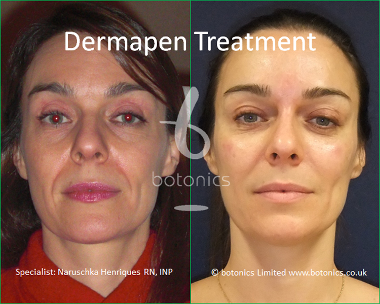 Collagen induction therapy treatment before and after photos