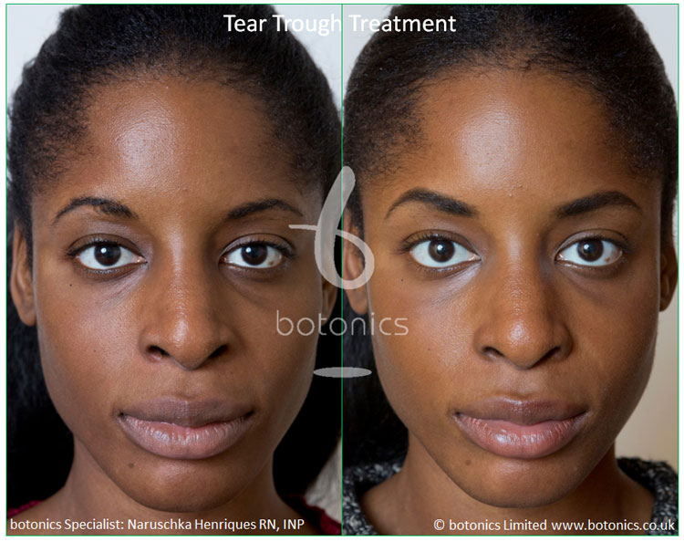 female tear trough young client front view
