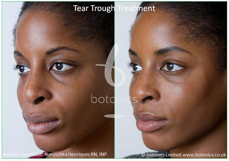 female tear trough young client left three quarter profile