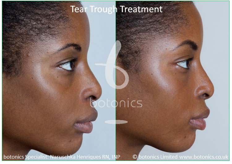 female tear trough young client left profile