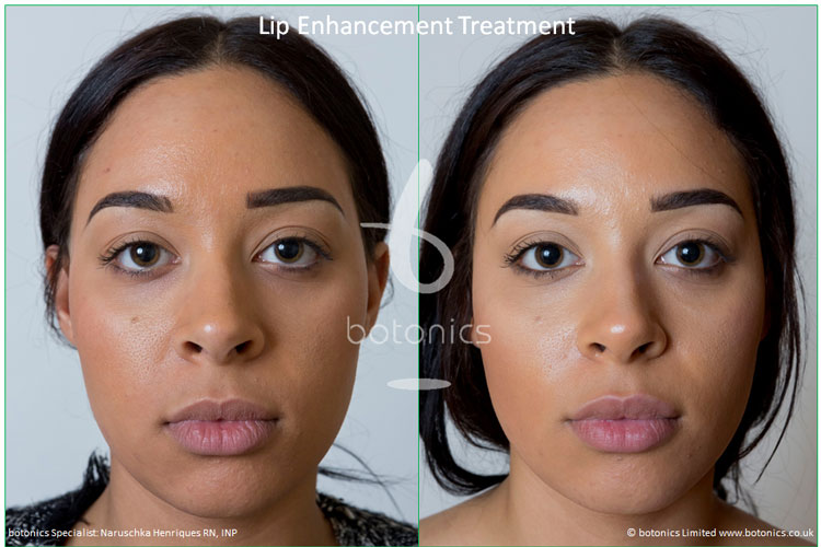 lip enhancement treatment restylane before and after botonics naruschka henriques 1