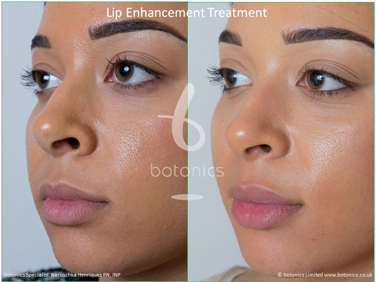 lip enhancement treatment restylane before and after botonics naruschka henriques 2