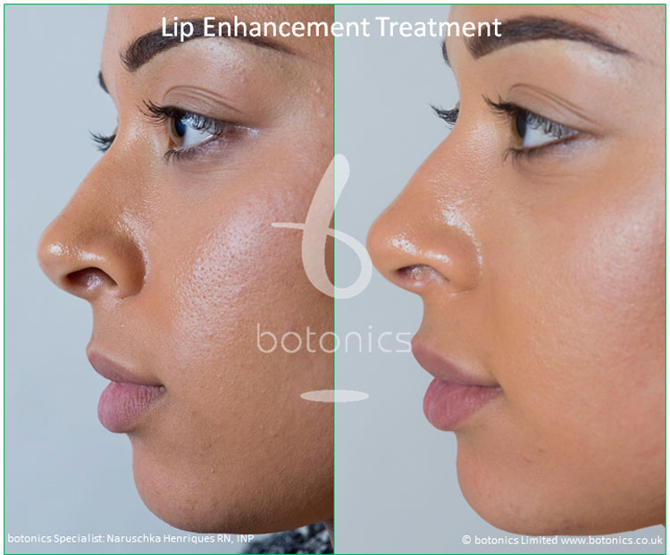 lip enhancement treatment restylane before and after botonics naruschka henriques 3