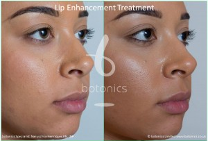 lip enhancement treatment restylane before and after botonics naruschka henriques 4