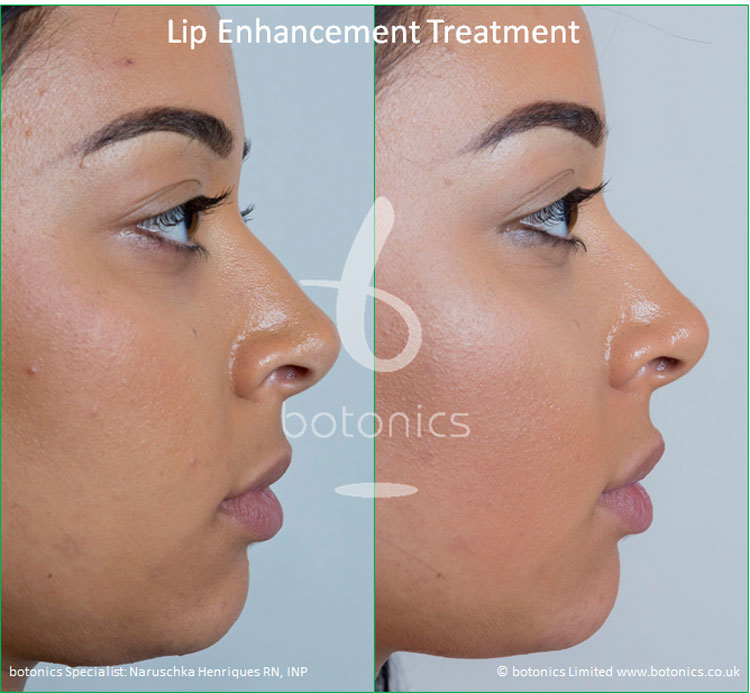 lip enhancement treatment restylane before and after botonics naruschka henriques 5