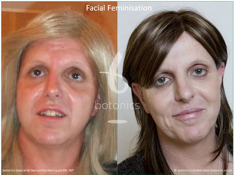 mtf transgender transsexual facial feature feminisation before after photo naruschka henriques botonics