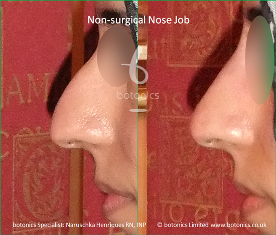 Female non surgical nose job
