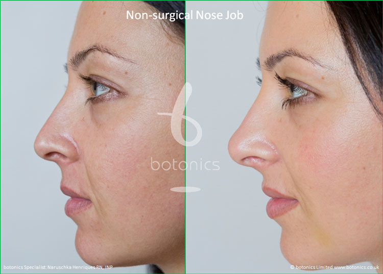 non surgical nose job female nose enhancement before after naruschka henriques botonics 2