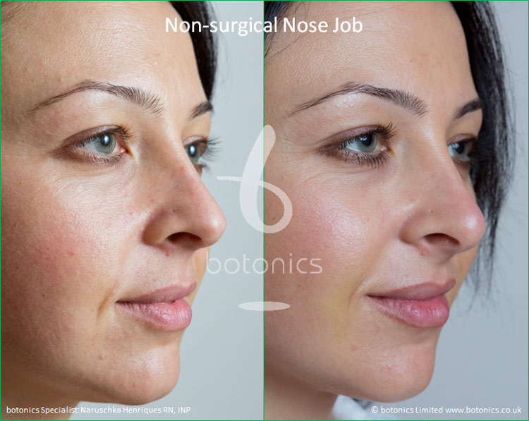 non surgical nose job female nose enhancement before after naruschka henriques botonics 3