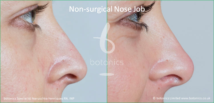 non surgical nose job female nose enhancement before after naruschka henriques botonics 4