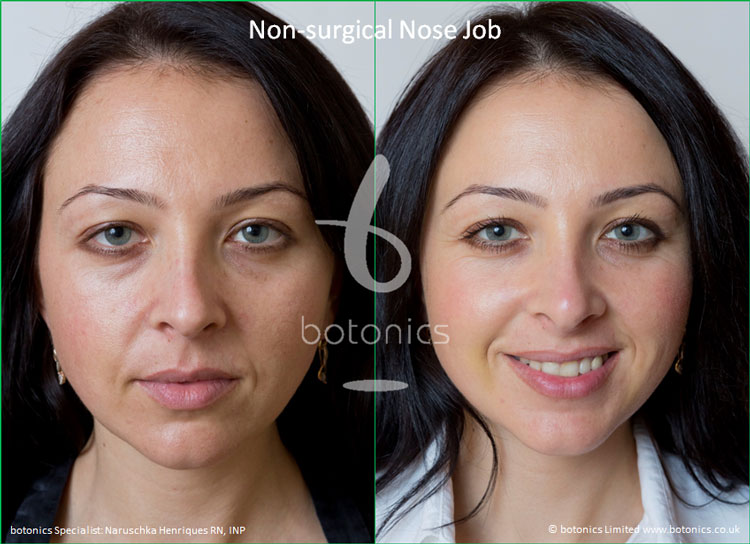 non surgical nose job female nose enhancement before after naruschka henriques botonics 5