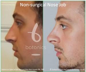 non surgical nose job male nose enhancement before after naruschka henriques botonics 2