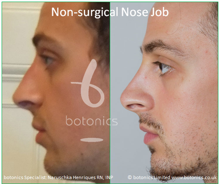 non surgical nose job male nose enhancement before after naruschka henriques botonics 2