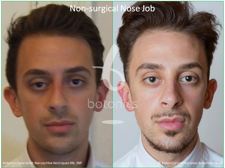 non surgical nose job male nose enhancement before after naruschka henriques botonics 3