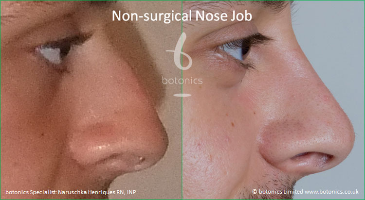 non surgical nose job male nose enhancement before after naruschka henriques botonics 4