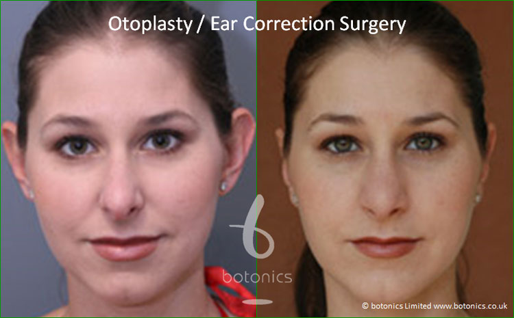 otoplasty ears pinned back ear correction surgery before and after botonics