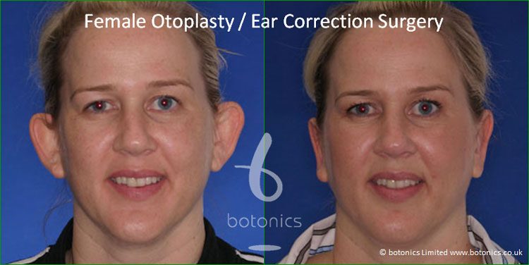 otoplasty female pinnaplasty ear pinning surgery reshaping pinning surgery before and after pictures botonics