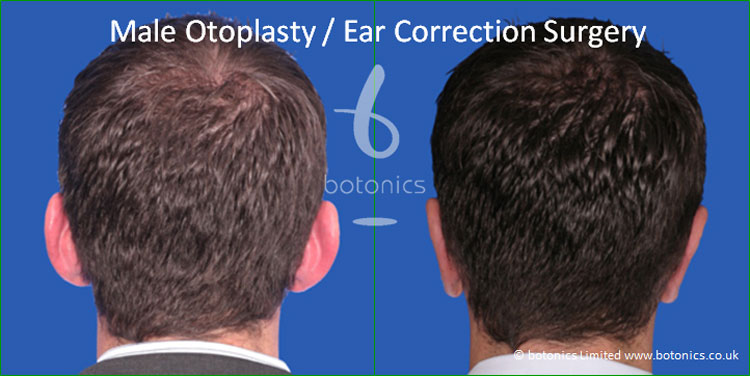 otoplasty male pinnaplasty ear pinning surgery reshaping pinning surgery before and after pictures botonics