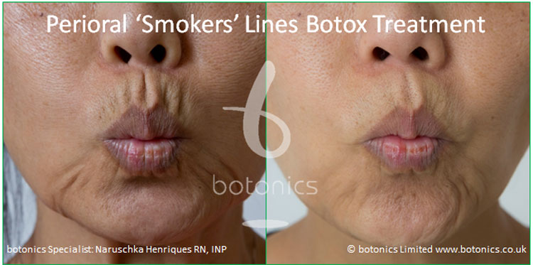perioral smokers lines botox treatment before and after botonics naruschka henriques 1