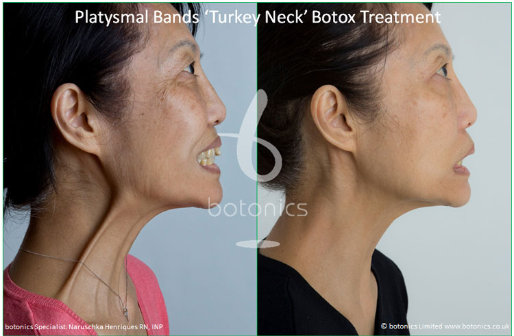 platysmal bands turkey neck botox treatment before and after botonics naruschka henriques 1