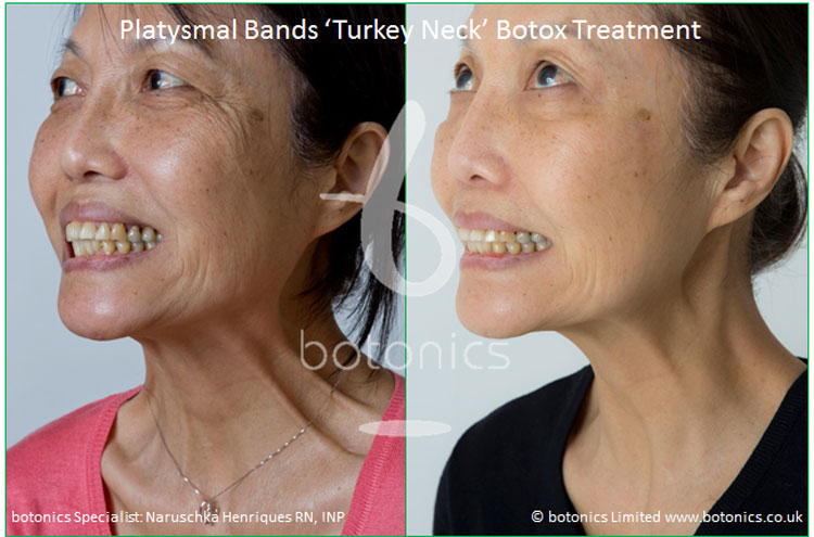 platysmal bands turkey neck botox treatment before and after botonics naruschka henriques 3
