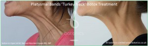platysmal bands turkey neck botox treatment before and after botonics naruschka henriques 4