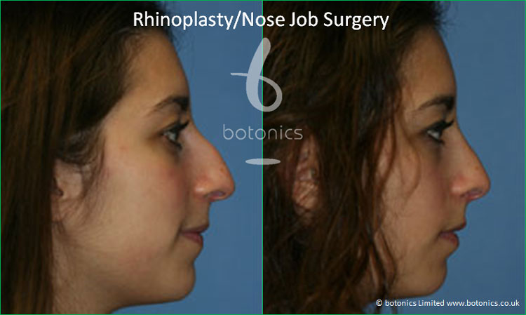 rhinoplasty nose job surgery before and after botonics