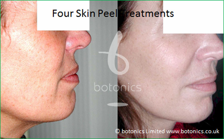 skin peel cosmo 18 percent prescription skin care botonics 1