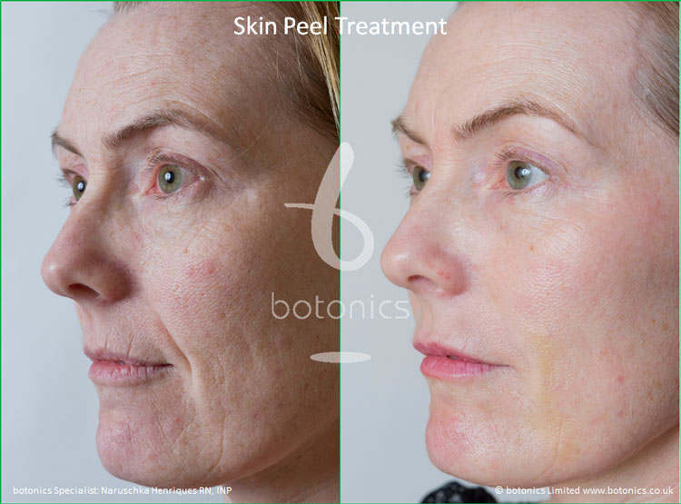 skin peel treatments before and after photos botonics naruschka henriques 2