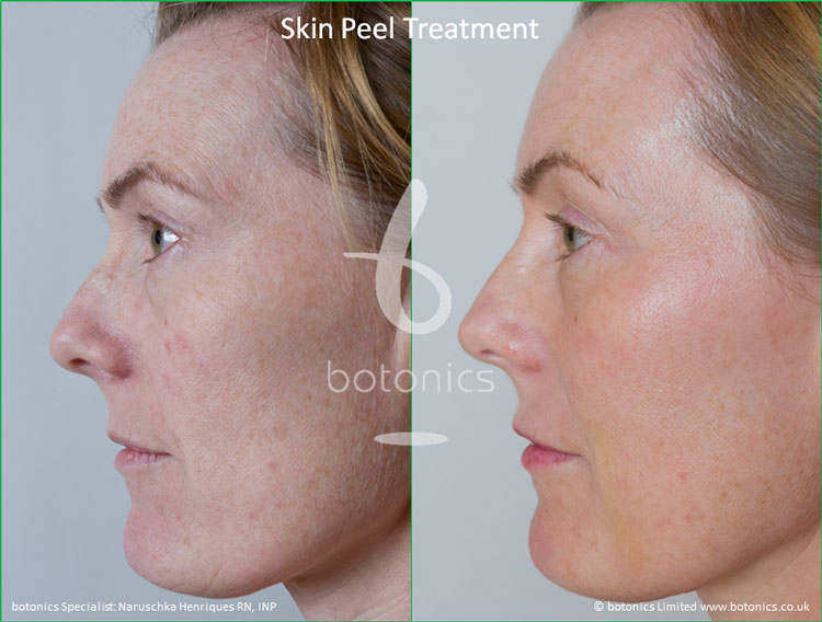 skin peel treatments before and after photos botonics naruschka henriques 3
