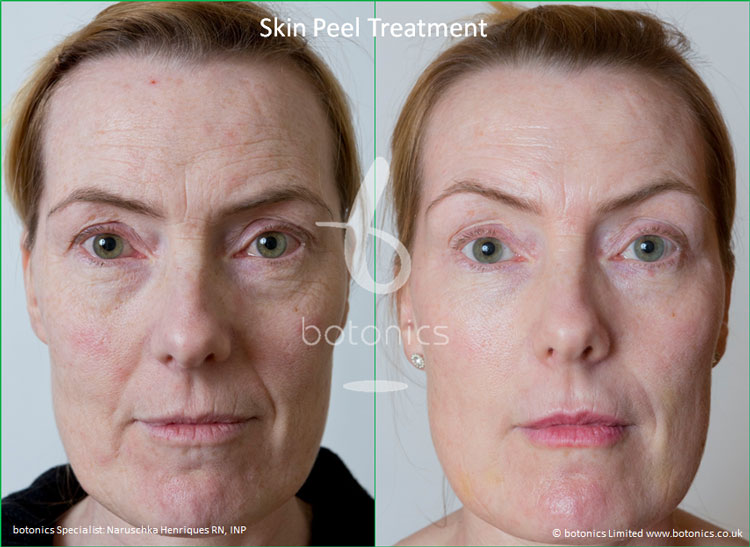 skin peel treatments before and after photos botonics naruschka henriques 1